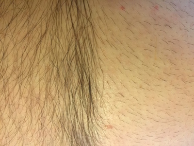 Shoulders to hips, they shaved my right side. I didn't think I was all that hairy ... until I saw what was left behind!